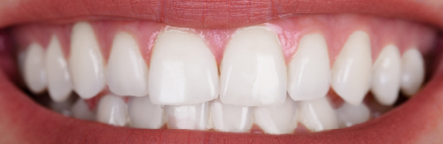 After teeth whitening treatment at Orchard House Dental, Beckenham