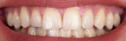 Before teeth whitening treatment at Orchard House Dental, Beckenham